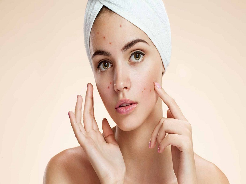 Efek Samping Wardah Acne Series